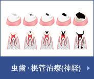 虫歯・根管治療(神経)