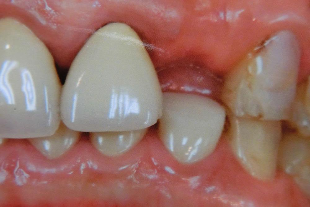 前歯の被せ物治療例