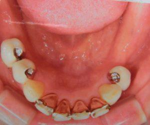 入れ歯の症例1